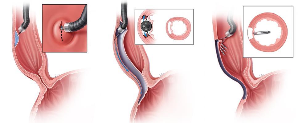 POEM - Per Oral Endoscopic Myotomy